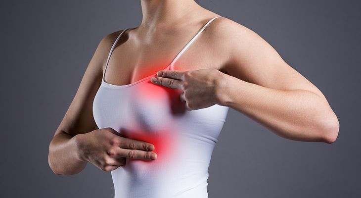 What are the symptoms and signs of Breast Cancer
